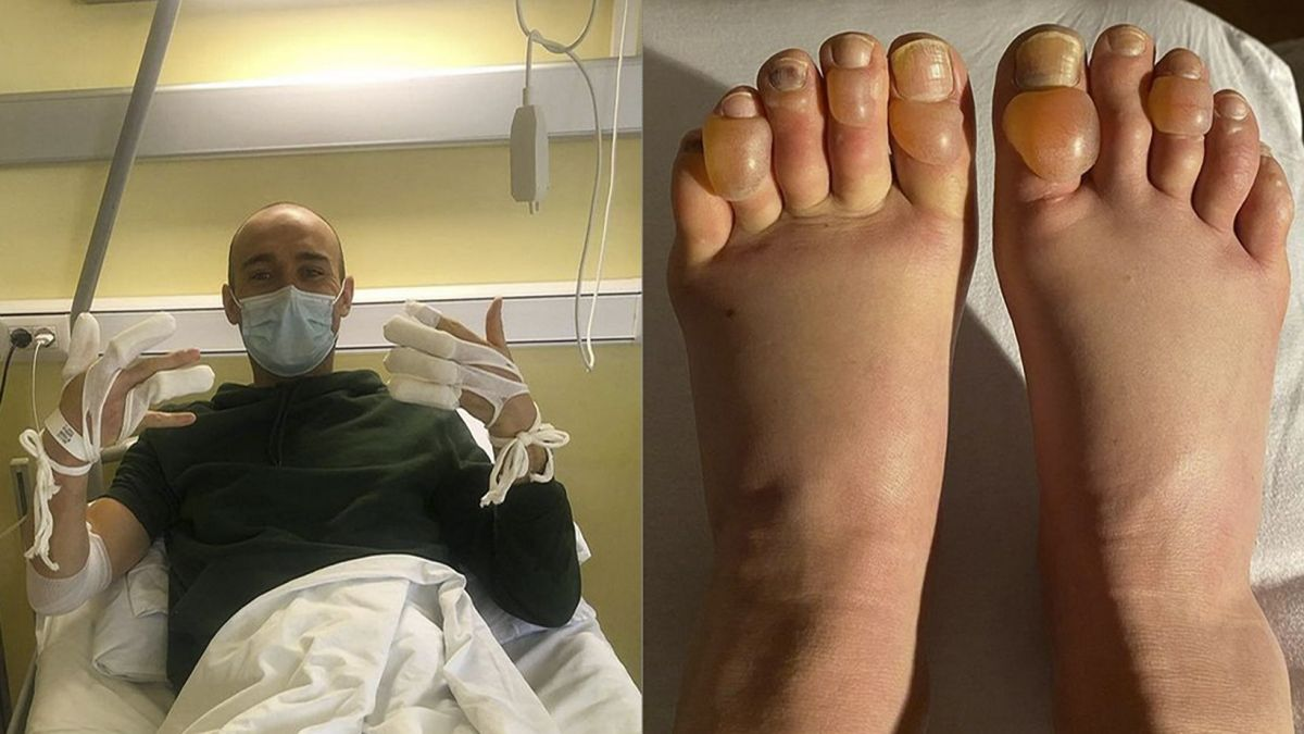 Einige Athleten haben schwerwiegende Erfrierungen davon getragen. Andreas Nygaard (links) war in medizinischer Behandlung im Spital.Fotos: z. Vgf.